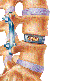 Lateral Access Spine Surgery Texas